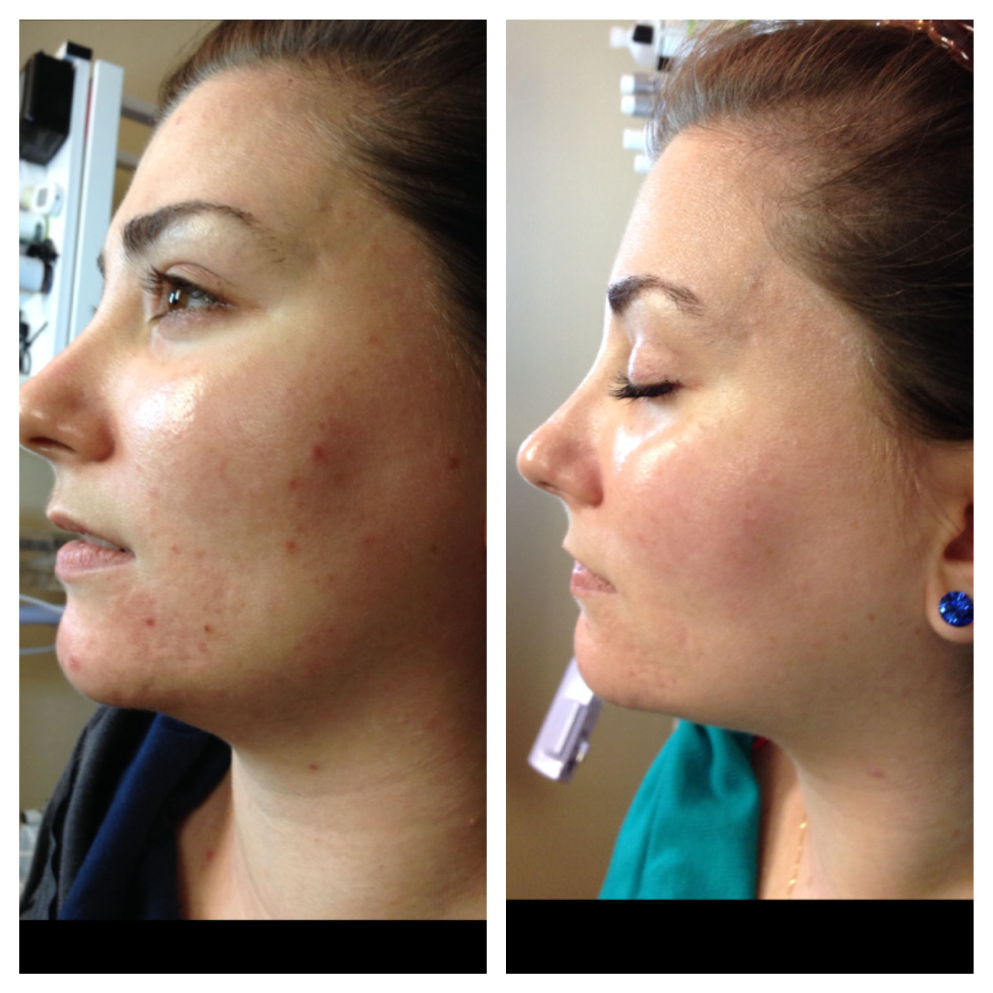 Acne Specialist Treatment Results