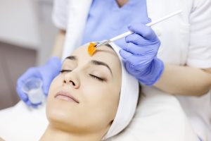 Time for a Chemical Peel