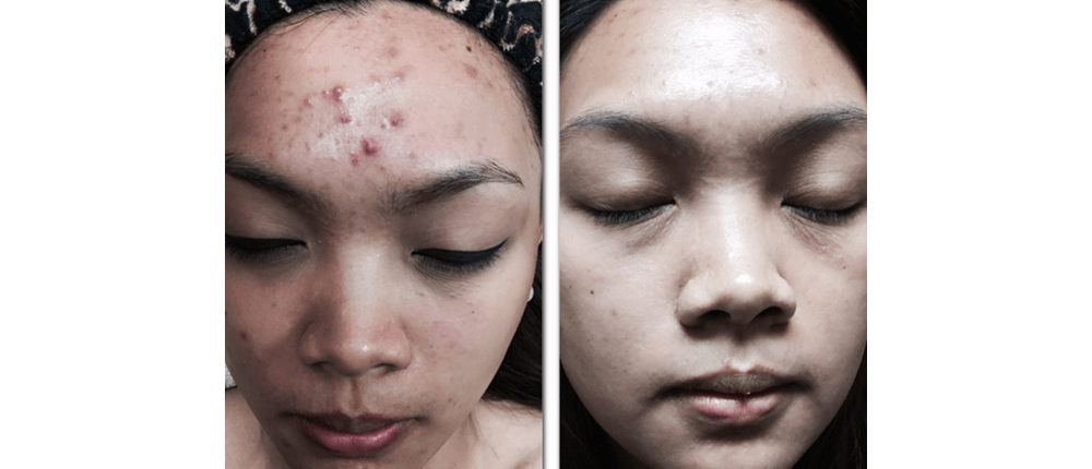 Before and After Skin Treatment at Reveal Salon